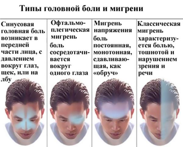 типы голоной боли при мигрени
