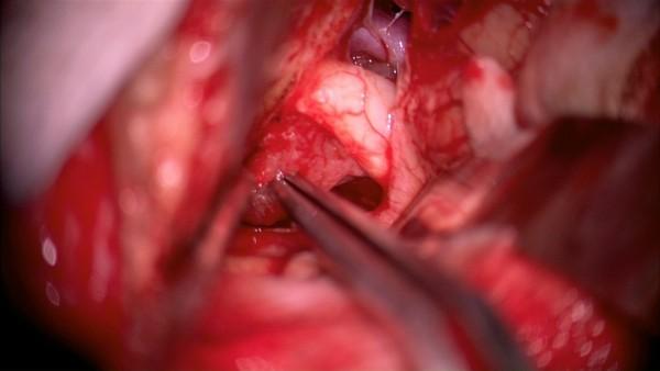 удаление опухоли