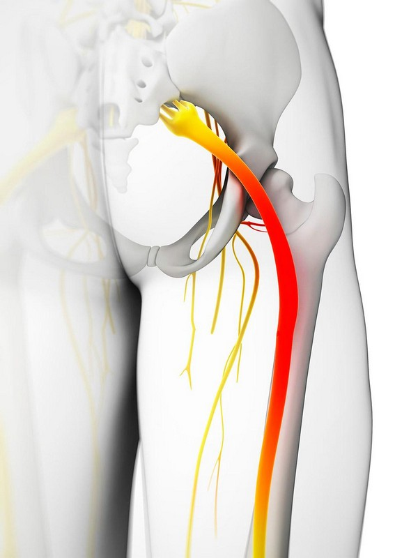 воспаленный седалищный нерв