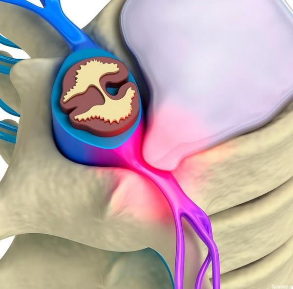 защемнение седалищного нерва