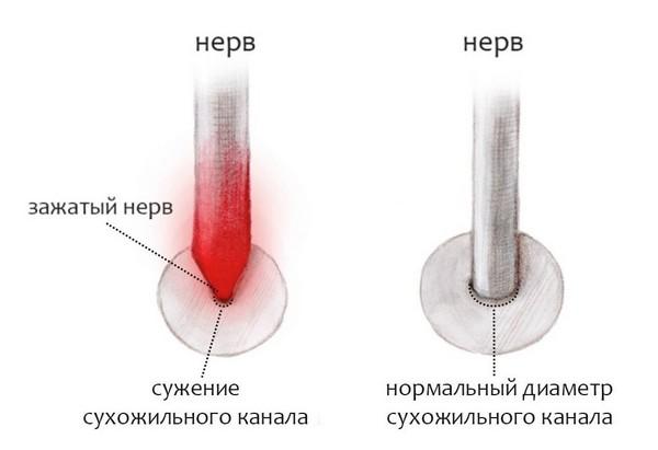 зажатый нерв