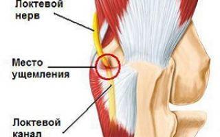 Лечение нейропатии локтевого нерва