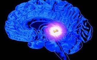 Последствия кисты в голове у взрослого