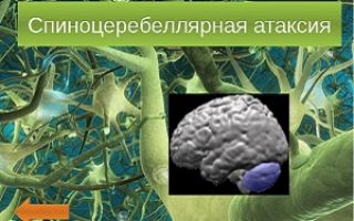 Спиноцеребеллярная атаксия и ее виды