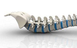 Как лечить синдром конского хвоста