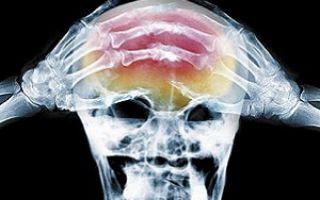Ретроцеребеллярная арахноидальная киста мозга