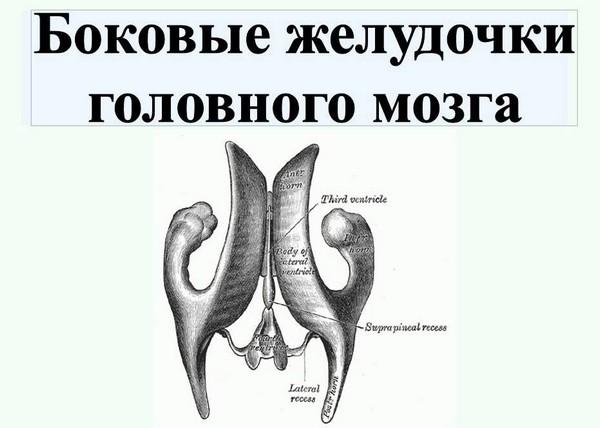 Боковые желудочки головного мозга