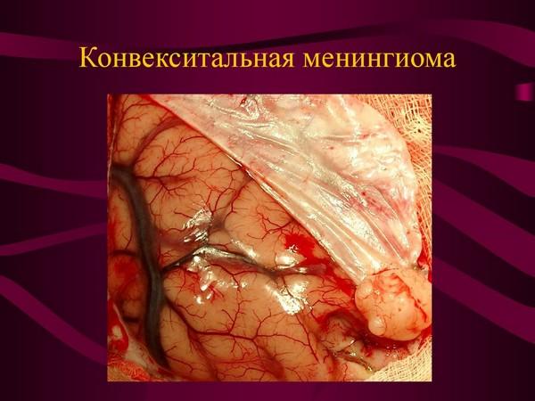 Конвекситальная менингиома