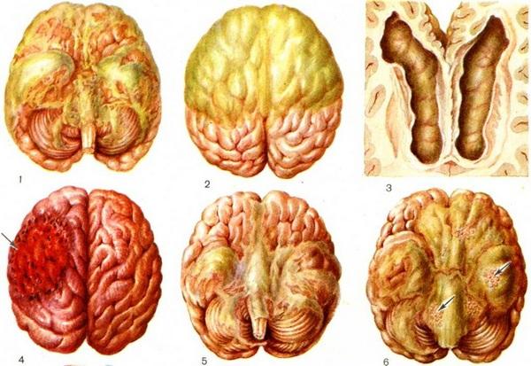 Последствия нейроинфекции код по мкб 10 у взрослых thumbnail