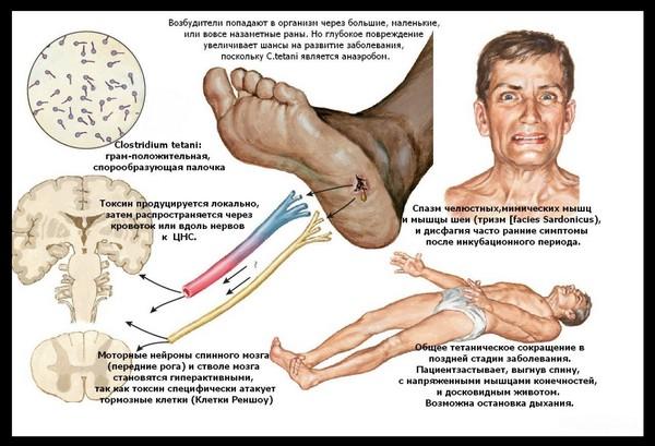 причины и симптомы столбняка