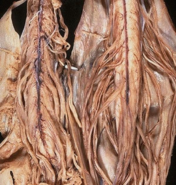 Прогрессирующая мышечная атрофия