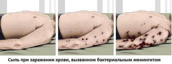 сыпь при бактериальном менингите