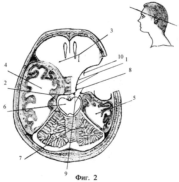арахноидальная киста левой височной области