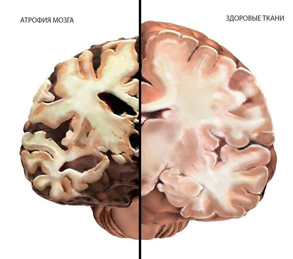Последствия нейроинфекции код по мкб 10 у взрослых