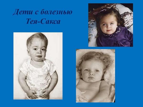 дети с болезнью
