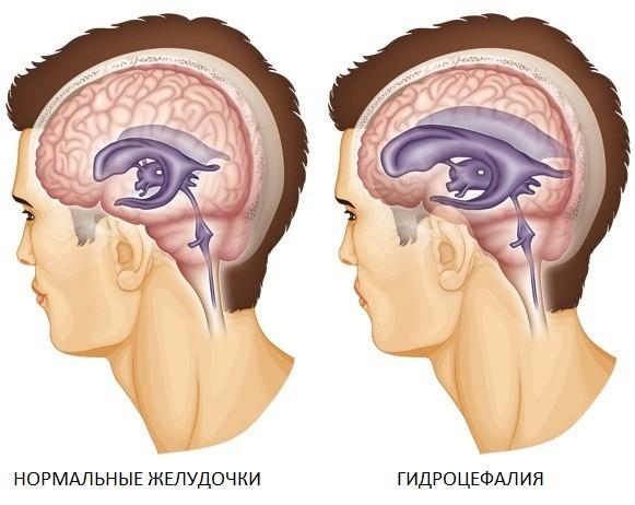 гидроцефалия у взрослых