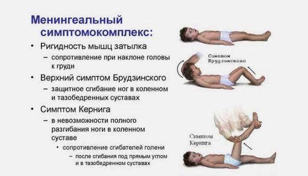 менингиальный симптомомкомплекс