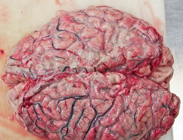 мозг пораженный менингитом