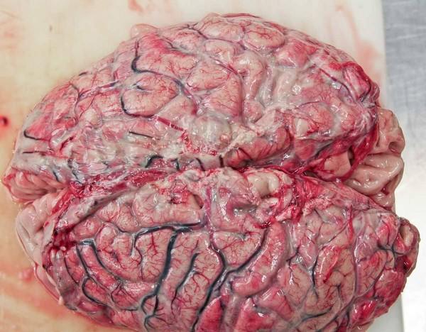 мозг при менигите