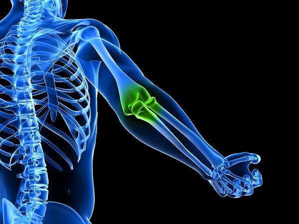 Изображение - Нерв в локтевом суставе немеет рука mrt-6