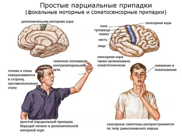 прациальные припадки