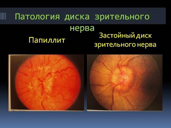 патологии зрительного нерва