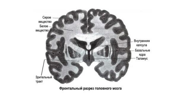 разрез мозга