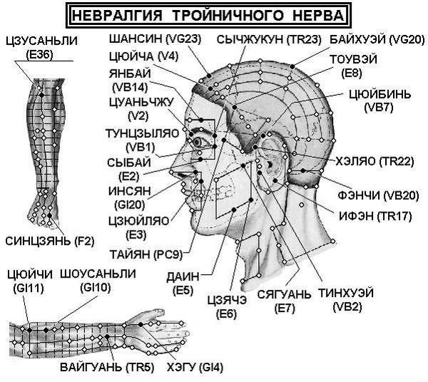 точеный массаж при невралгии