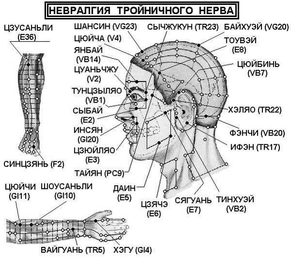 точки для лечения невралгии тройничного нерва
