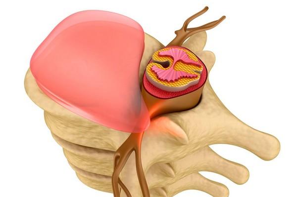 Изображение - Обезболивающие препараты при защемлении нерва в суставах vospalenie-nerva